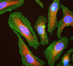 HeLa cells in tissue culture,stained with antibody to actin(green),vimentin(red) & DNA(blue).Image:EnCor Biotechnology Inc./GerryShaw[CC BY-SA 3.0 (https://creativecommons.org/licenses/by-sa/3.0)]