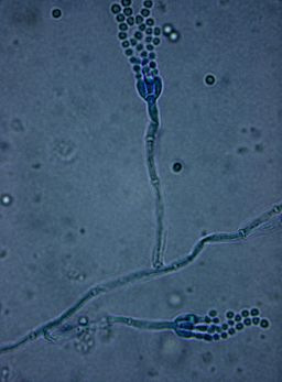 Penicillium Spp. under bright field microscopy (10 x 100X) with lactophenol cotton blue stain by Dr. Sahay [CC BY-SA 3.0  (https://creativecommons.org/licenses/by-sa/3.0)], from Wikimedia Commons