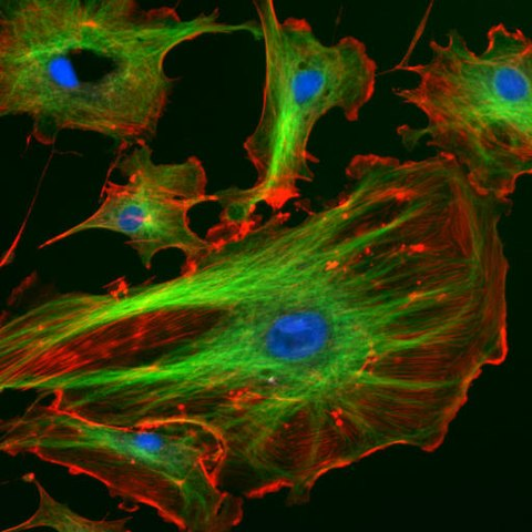Bovine pulmonary artery endothelial (BPAE) cells with Fluorescent dyes by http://rsb.info.nih.gov/ij/images/, Public Domain, https://commons.wikimedia.org/w/index.php?curid=655748