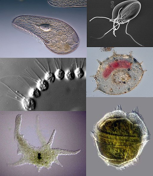 Protozoa collage by respectively: Frank Fox, Sergey Karpov, CDC/ Dr. Stan Erlandsen, Picturepest, Thierry Arnet, dr.Tsukii Yuuji [CC BY-SA 4.0 (https://creativecommons.org/licenses/by-sa/4.0)]