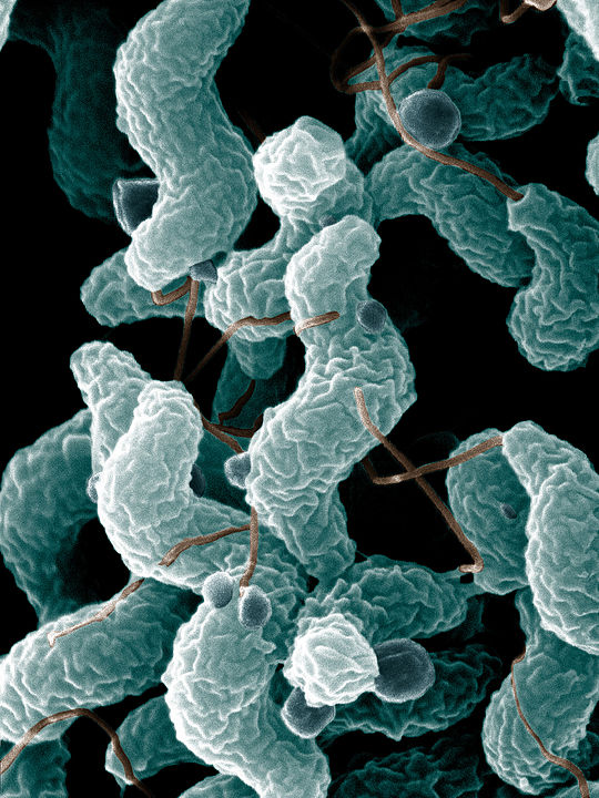 Campylobacter jejuni by De Wood, Pooley, USDA, ARS, EMU. Public Domain, https://commons.wikimedia.org/w/index.php?curid=2958691