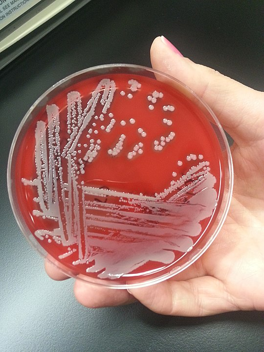 Staphylococcus aureus on blood agar by User:Valugi - Own work, CC BY-SA 3.0, https://commons.wikimedia.org/w/index.php?curid=26433168