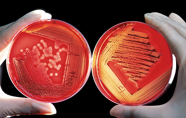 Blood agar plates are often used to diagnose infection. On the right is a positive Streptococcus culture; on the left is a positive Staphylococcus culture.