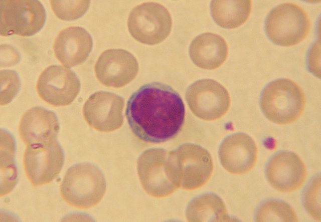 Lymphocytes, Human, NicolasGrandjean assumed (based on copyright claims). Own work assumed (based on copyright claims)., CC BY-SA 3.0, https://commons.wikimedia.org/w/index.php?curid=602984