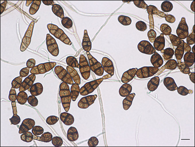 Alternaria Alternata by Abdulghafour [CC BY-SA 4.0 (https://creativecommons.org/licenses/by-sa/4.0)], from Wikimedia Commons