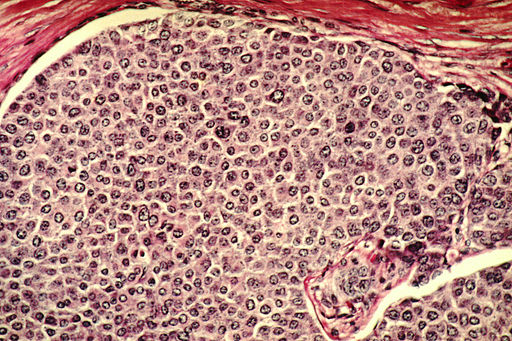 Breast cancer invades normal tissues,for new centers of growth.Duct on inside of breast is filled with tumor cells.Histological slide,with H&E stain & magnified to 100X by Dr.Cecil Fox[Public domain]