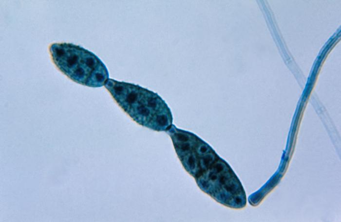 This photomicrograph shows a chain of conidia of a Alternaria sp. fungus, can be a cause of phaeohyphomycosis. http://phil.cdc.gov/phil_images/20030612/9/PHIL_3963_lores.jpg via wikipedia commons