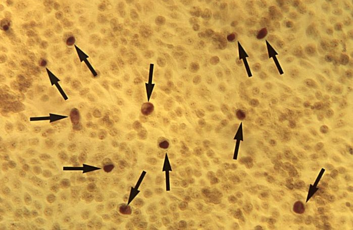 Romanowsky-Giemsa stained smears-cytoplasmic bodies/inclusion of chlamydia-Dr E. Arum/N. Jacobs-CDC public health library-www.usmlerx.com, https://commons.wikimedia.org/w/index.php?curid=10538699
