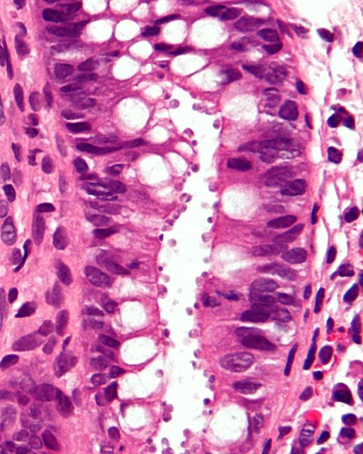 Very high magnification micrograph of cryptosporidiosis (cryptosporidium infection). H&E stain. Colonic biopsy by Nephron [CC BY-SA (https://creativecommons.org/licenses/by-sa/3.0)]