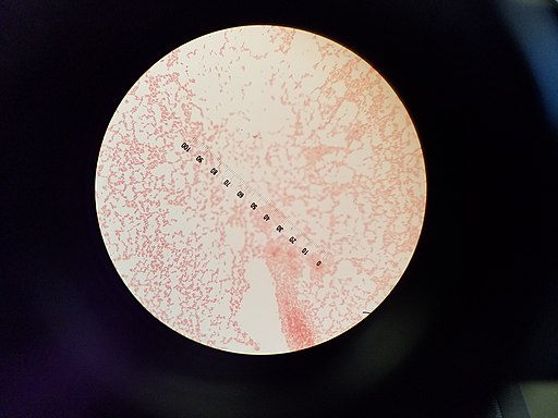 E.coli bacteria under 100x magnification Date 14 September 2016, 16:29:04 Source Own work Author Sunilby Sunil / CC BY (https://creativecommons.org/licenses/by/4.0)