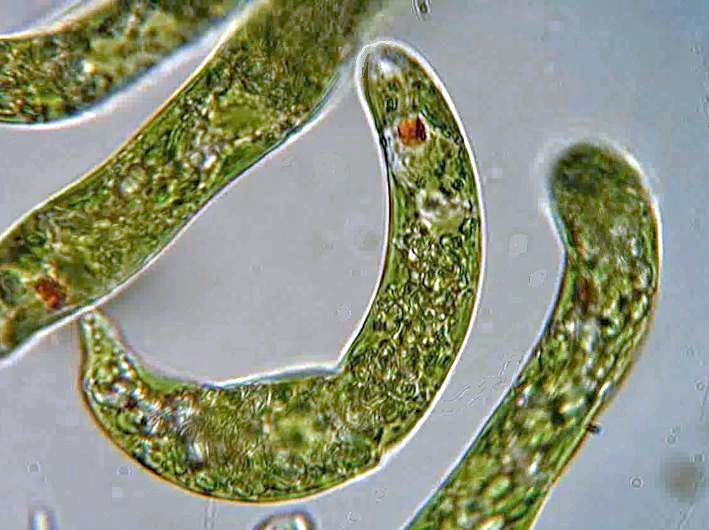 Euglena collected in Wakefield, Quebec By Deuterostome (Own work) [CC BY-SA 3.0 (https://creativecommons.org/licenses/by-sa/3.0)], via Wikimedia Commons