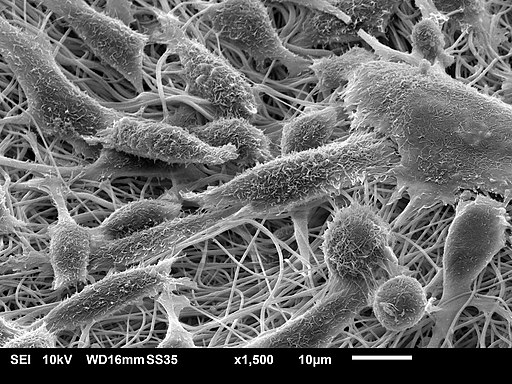 SEM image of mouse fibroblasts cultured on electrospun nanofibrous scaffold material made of polycaprolactone with gelatin.Judyta Dulnik / CC BY-SA (https://creativecommons.org/licenses/by-sa/4.0)