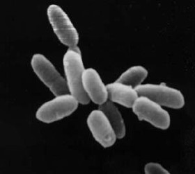 Halobacteria By NASA - en:Image:Halobacteria.jpg(Taken from [1]), Public Domain, https://commons.wikimedia.org/w/index.php?curid=2979987