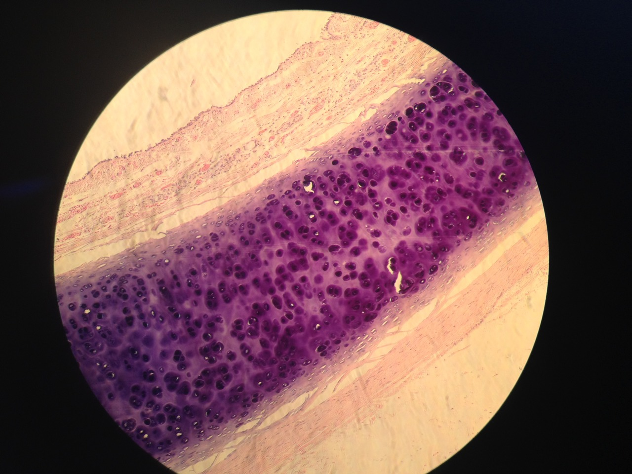 histological sample of trachea cells