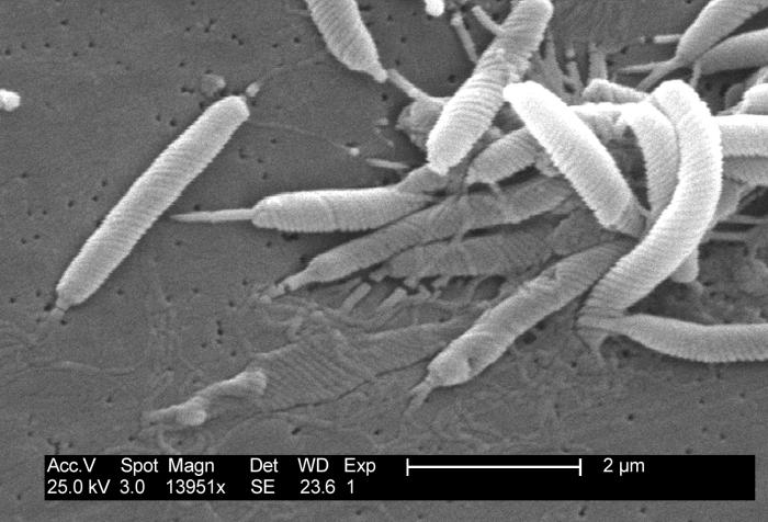 Helicobacter pylori , scanning electron microscopy by Photo Credit: Janice Carr Content Providers(s): CDC/ Dr. Patricia Fields, Dr. Collette Fitzgerald Licenza(Riusare questo file) PD-USGov-HHS-CDC