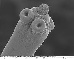 Scolex of the rodent tapeworm with rostellum at the tip by Magdalena ZZ [CC BY-SA 3.0 (https://creativecommons.org/licenses/by-sa/3.0)]