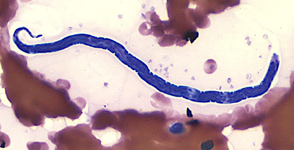 Loa Loa Worm By CDC - DPDx - http://www.dpd.cdc.gov/dpdx/HTML/ImageLibrary/Filariasis_il.htm, Public Domain, https://commons.wikimedia.org/w/index.php?curid=6046699