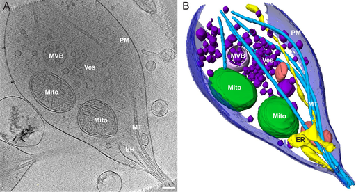Morphology of mitochondria in spatially restricted axons revealed by cryo-electron tomography. PLoS Biol 16(9): e2006169 by Fischer T.D., Dash P.K., Liu J., Waxham M.N. Public Domain.