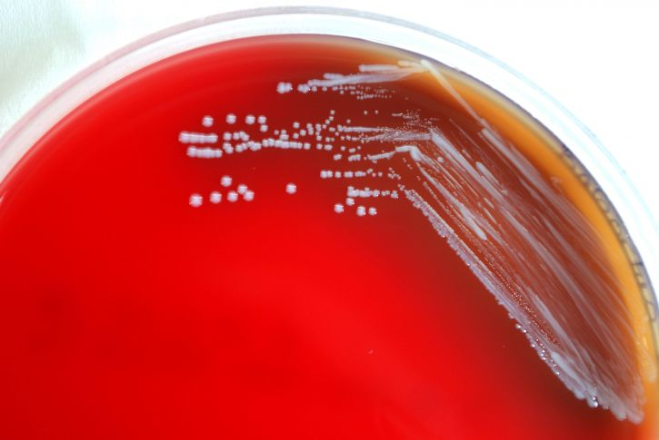 Photo by Dr. Todd Parker, Audra Marsh, USCDCP on Pixnio. Brucellosis Bacteria. Public Domain