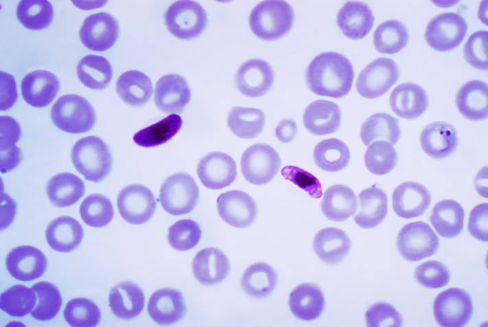 Blood smear contains a macro- and microgametocyte of the Plasmodium falciparum parasite, Photo Credit:Content Providers(s): CDC/Dr. Mae MelvinTranswiki approved by: w:en:User:Dmcdevit [Public domain]