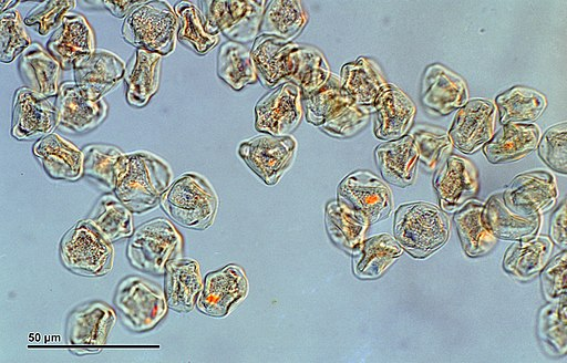Pollen grains: Pine tree, 1200X By Doc. RNDr. Josef Reischig, CSc. (Author's archive) [CC BY-SA 3.0 (https://creativecommons.org/licenses/by-sa/3.0)], via Wikimedia Commons