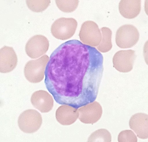 Reactive lymphocyte by SpicyMilkBoy, CC BY-SA 4.0 <https://creativecommons.org/licenses/by-sa/4.0>, via Wikimedia Commons