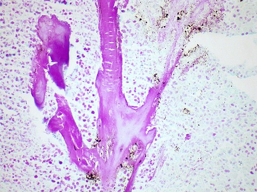 Small cell lung carcinoma with Feulgen Stain By Yale Rosen from USA [CC BY-SA 2.0 (http://creativecommons.org/licenses/by-sa/2.0)], via Wikimedia Commons