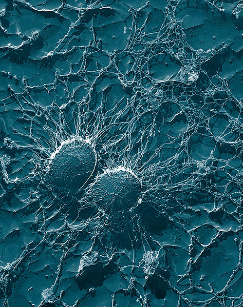 Bacterial cells of Staphylococcus aureus by Eric Erbe, Christopher Pooley [Public domain], via Wikimedia Commons