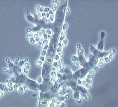 Fertile Trichoderma in Public Domain, Quelle: US Department of Agriculture, Agricultural Research Service, Systematic Botany and Mycology Laboratory via Wikipedia Commons