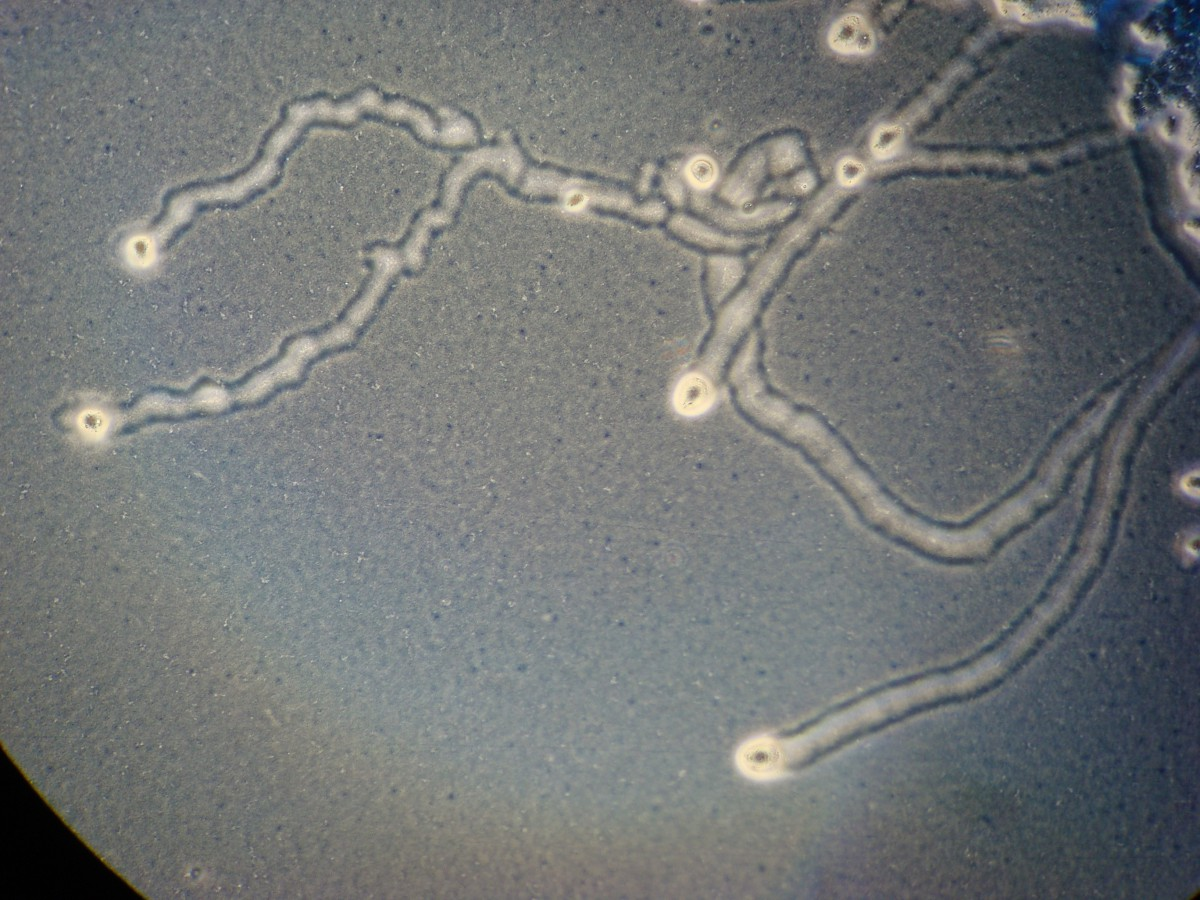 https://catalog.hardydiagnostics.com. A. castellanii (ATCC ® 30010) feeding tracks on Non-Nutrient Agar E. coli plate (Cat. no. G225). Trophozoites visible at ends of tracks. 100x phase-contrast.