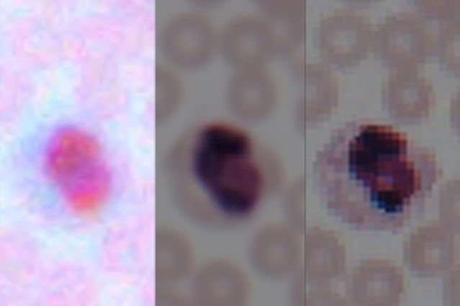 Image of a blood smear from a cell phone camera (left), following enhancement by the algorithm (center), and taken by a lab microscope (right). Image courtesy of Ozcan Research Group/UCLA.