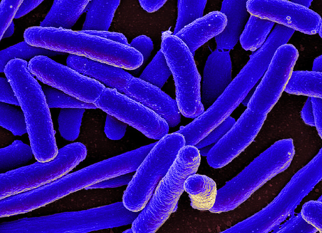 E. coli Bacteria  Colorized scanning electron micrograph of Escherichia coli, grown in culture and adhered to a cover slip by NIAID on Flickr