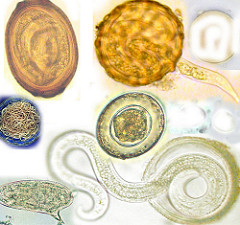 SuSanA Secretariat on Flickr.com. Unaltered. Helminth eggs:As follows left-right:Trichosomoides egg,Ascaris lumbricoides,adult roundworms,Hymenolepis nana,Schistosoma mansoni and Toxocara canis
