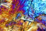 microscopic artificial sweetener crystals in polarized light