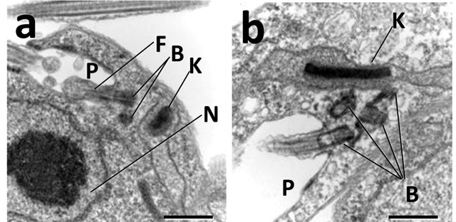 Electron micrograph of normal kinetoplast (K) of Trypanosoma brucei by Angamuthu Selvapandiyan,et al. CC BY 2.5, https://commons.wikimedia.org/w/index.php?curid=37967691