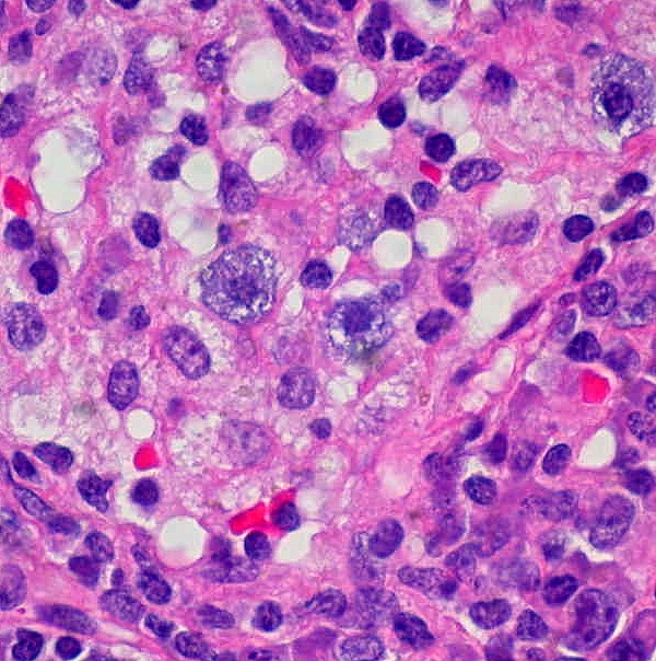 Mast Cells By Ed Uthman at https://www.flickr.com/photos/euthman/206766509  Usually there are numerous mast cells in sinus histiocytosis. Unaltered image.