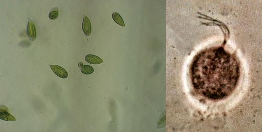 File:Gonyostomum-cells.jpg, File:Trichomonas vaginalis phase contrast microscopy by various authors / CC BY-SA (https://creativecommons.org/licenses/by-sa/3.0)