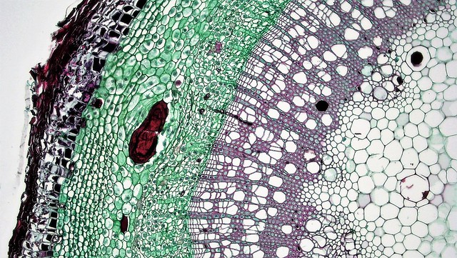 Woody Dicot Stem: Secretory Ducts and Cells in One Year Sambucus,cross section: Sambucus stem at 100x by Berkshire Community College Bioscience Image Library, https://flic.kr/p/VsaX3w