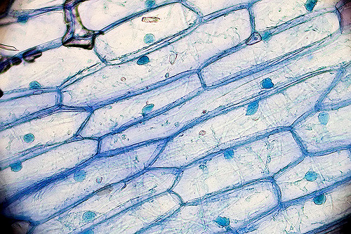 onion cells stained with Methylene Blue