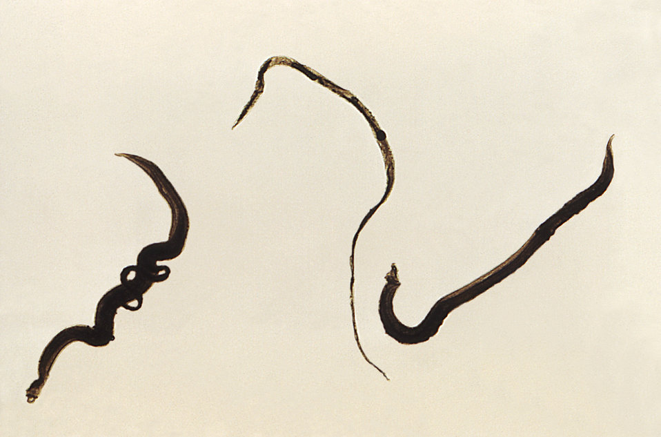 4 Schistosoma mansoni trematodes.Far left-thinner female cradled inside thicker male worm's gynecophoral canal.Center is single thin female worm,right is more robust,thicker male S. mansoni by CDC