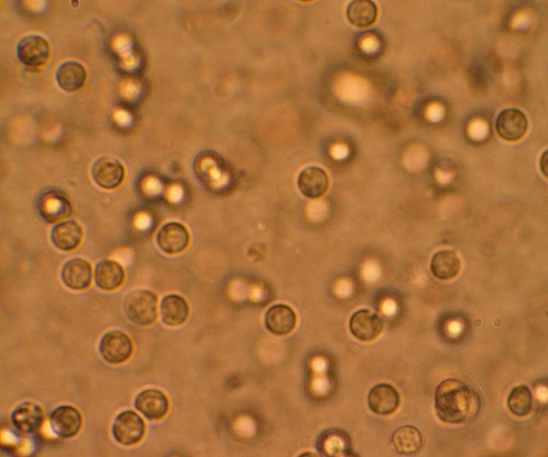 Multiple white cells seen in the urine of a person with a urinary tract infection using a microscopy